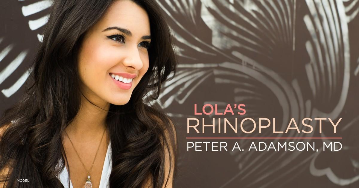 Lola's Rhinoplasty story banner, Dr. Adamson Toronto