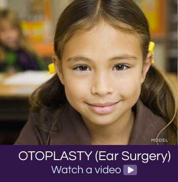 Otoplasty video